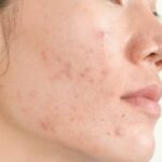 iron gives acne